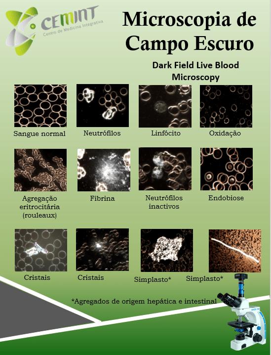 Microscopia Campo Escuro